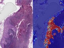 Google yapay zeka ile kanser teşhisinde doktorları gölgede bıraktı