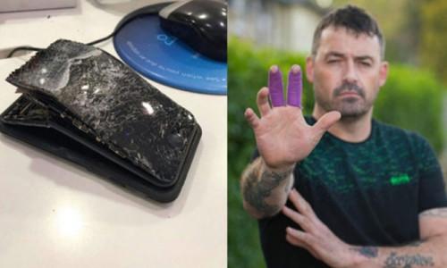 iPhone 7 patlaması yaralanmaya neden oldu!