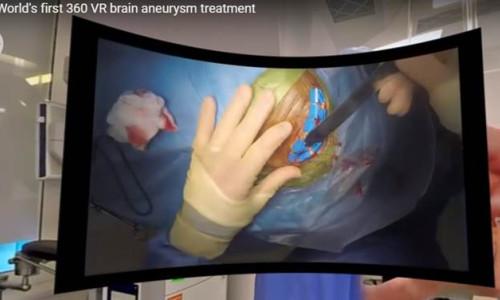 Dünyanın ilk VR beyin ameliyatı