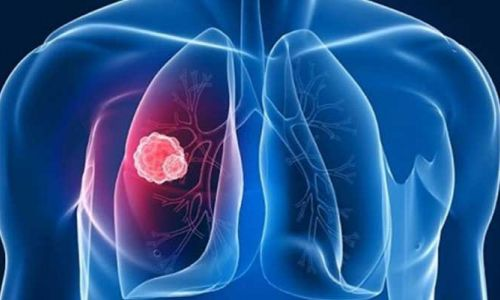 Google akciğer kanserini yapay zeka ile teşhis edecek